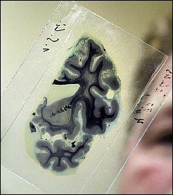 Вакцина против болезни Альцгеймера